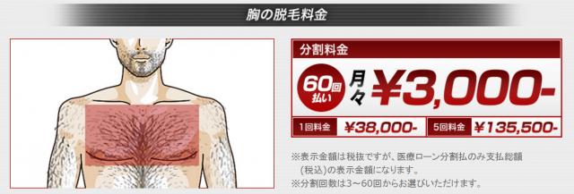 ゴリラクリニックの胸脱毛の料金表