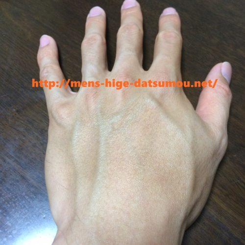湘南美容外科で脱毛後の手の甲の写真