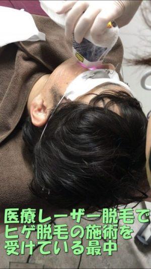 医療レーザー脱毛でヒゲ脱毛を受けている男性